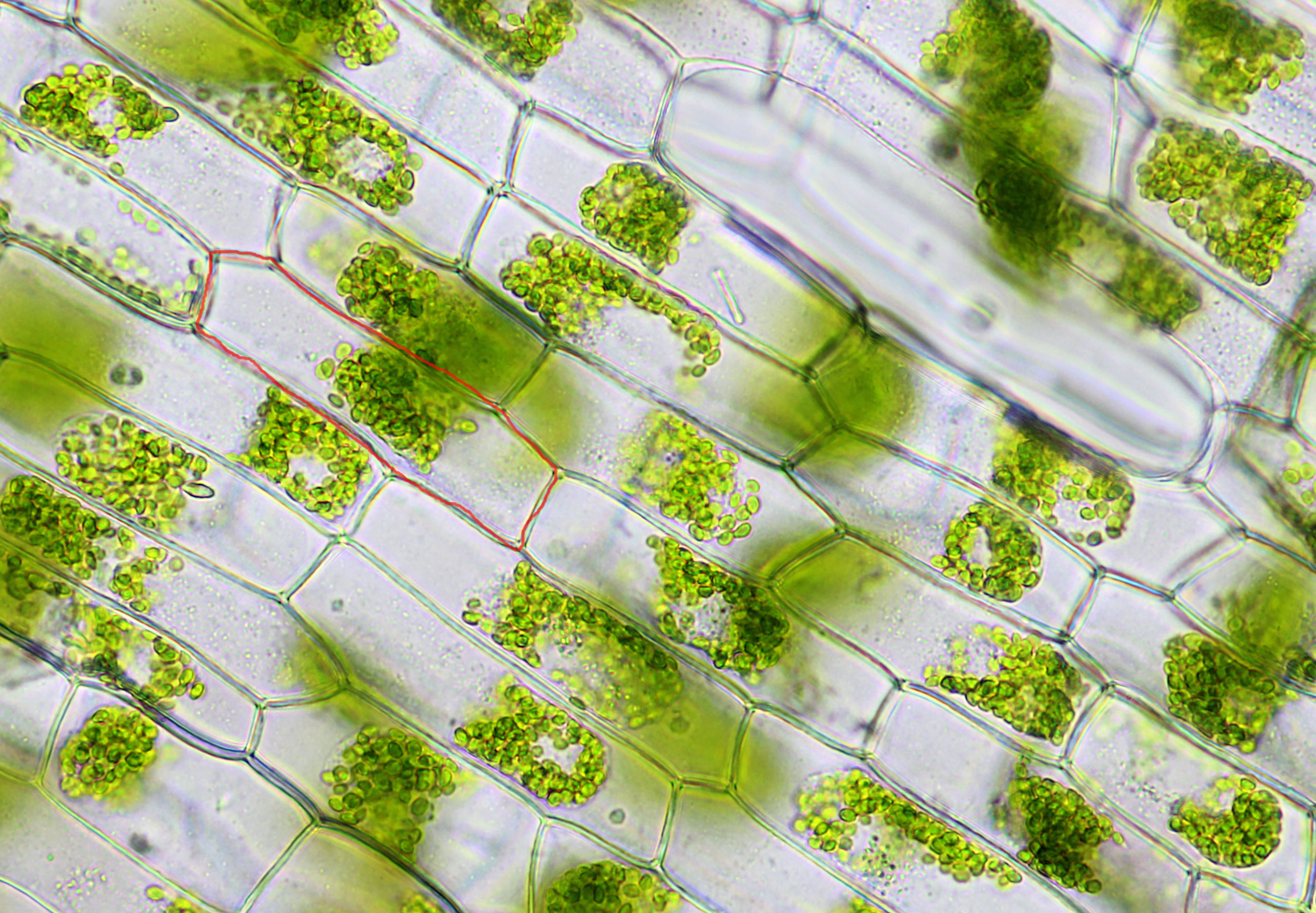 Elodea Leaf Cell Under Microscope Elodea Leaf Cells in Hypotonic